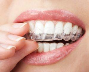 Impresión 3d dental